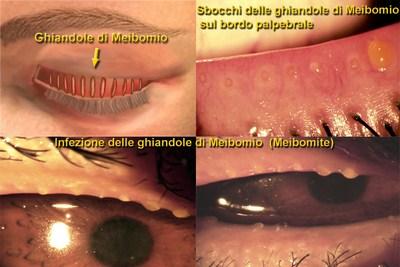 blefarite-cronica-ghiandole
