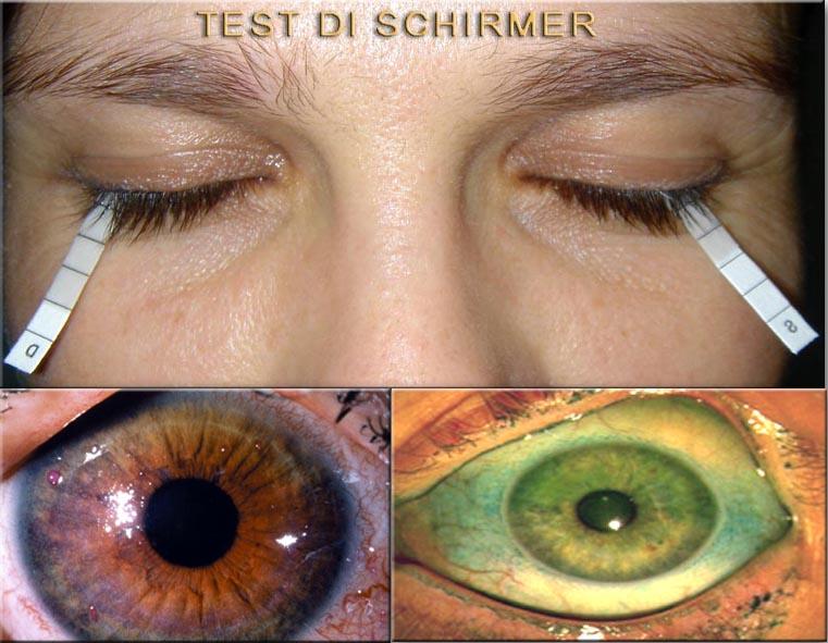 test lacrimali