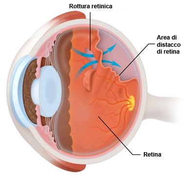 distacco_retina con rott