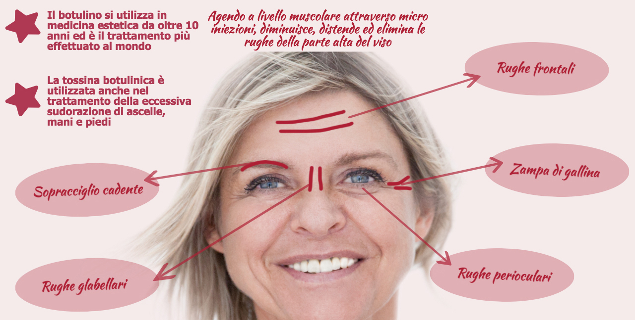 infografica-botox copia