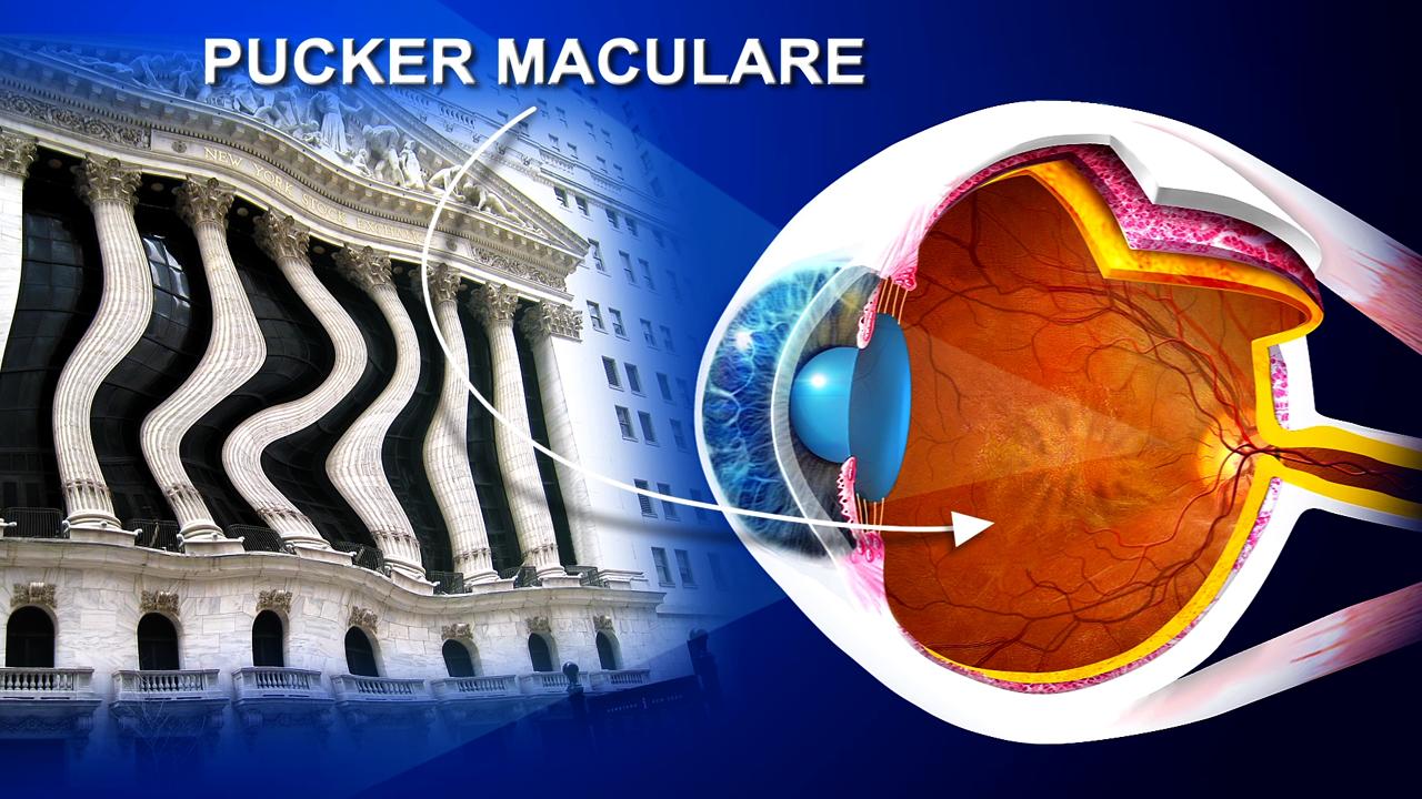 Pucker-maculare_1-senza-prof