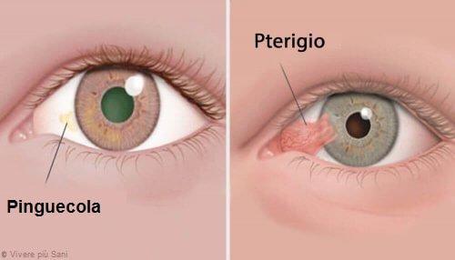 pinguecula-e-pterigio