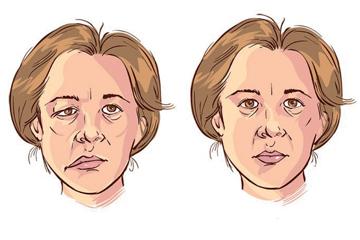 Paralisi-nervo-facciale