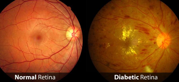 Retinopatia_diabetica 1
