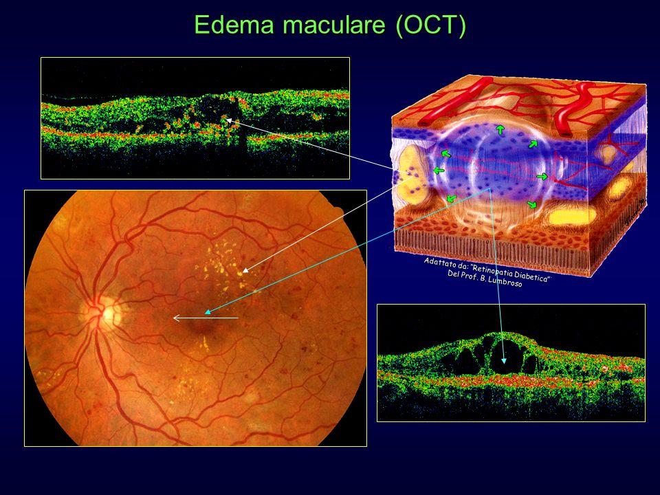 Edema maculare (OCT) Adattato da: Retinopatia Diabetica Del Prof. B. Lumbroso.
