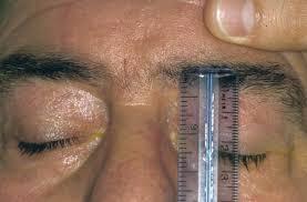 misurazione palpebre preliminare