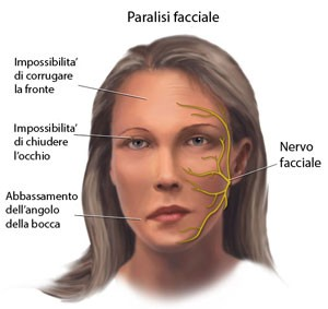 paralisi-facciale-300x283